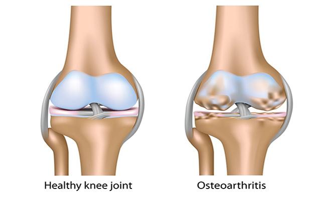 ورزشهای زانو و مفصل ران برای درمان استئوآرتریت