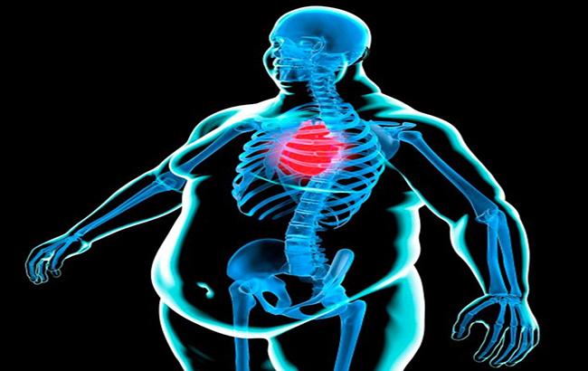 افزایش وزن و بیماریهای قلبی، نتیجه باعجله غذاخوردن