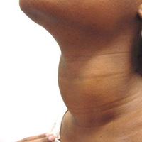 التهاب تیروئید پس از زایمان