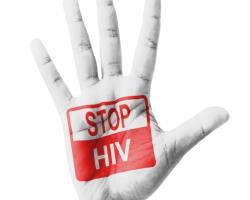 عامل بیماری ایدز چیست؟ (احمد رهنمای چیتساز - داروساز)