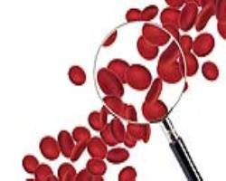 چگونه گلبولهای قرمز خون را افزایش دهیم:  بایدها و نبایدهای سبک زندگی