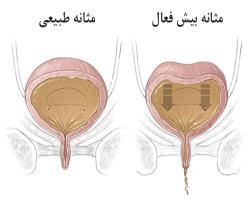 درمان طبیعی مثانه بیش فعال