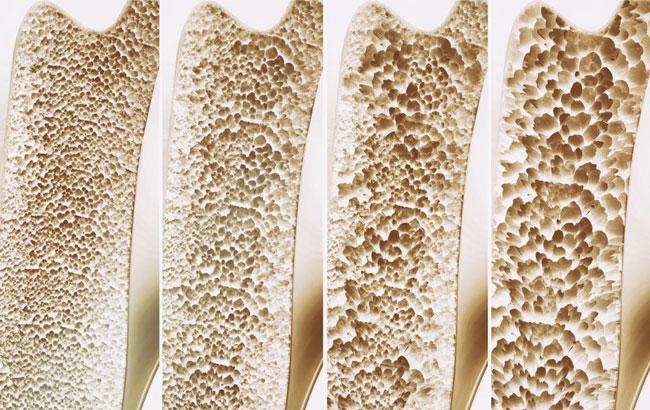 سرآغاز پوکی استخوان