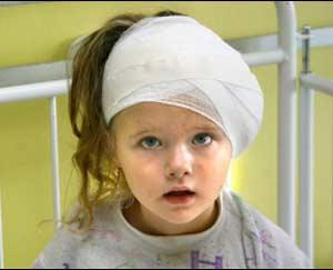 آثار ضربه مغزی دوران کودکی